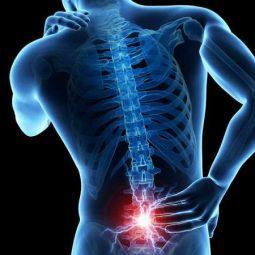 Лечение остеохондроза в СПб