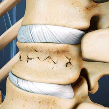 Реабилитация при компрессионном переломе позвоночника