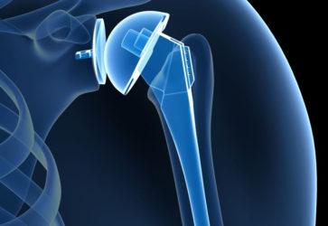 Реабилитация после эндопротезирования плечевого сустава
