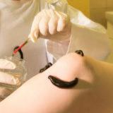 Гирудотерапия с иглорефлексотерапией