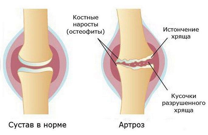 Артроз заболевания суставов в спб упражнения при гонартрозе 1 степени коленного сустава