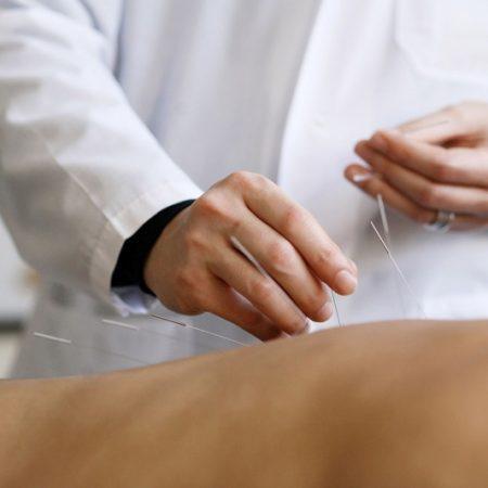 Иглорефлексотерапия для взрослых и детей